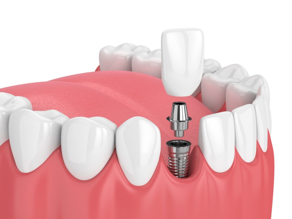 the dentist, dental implants