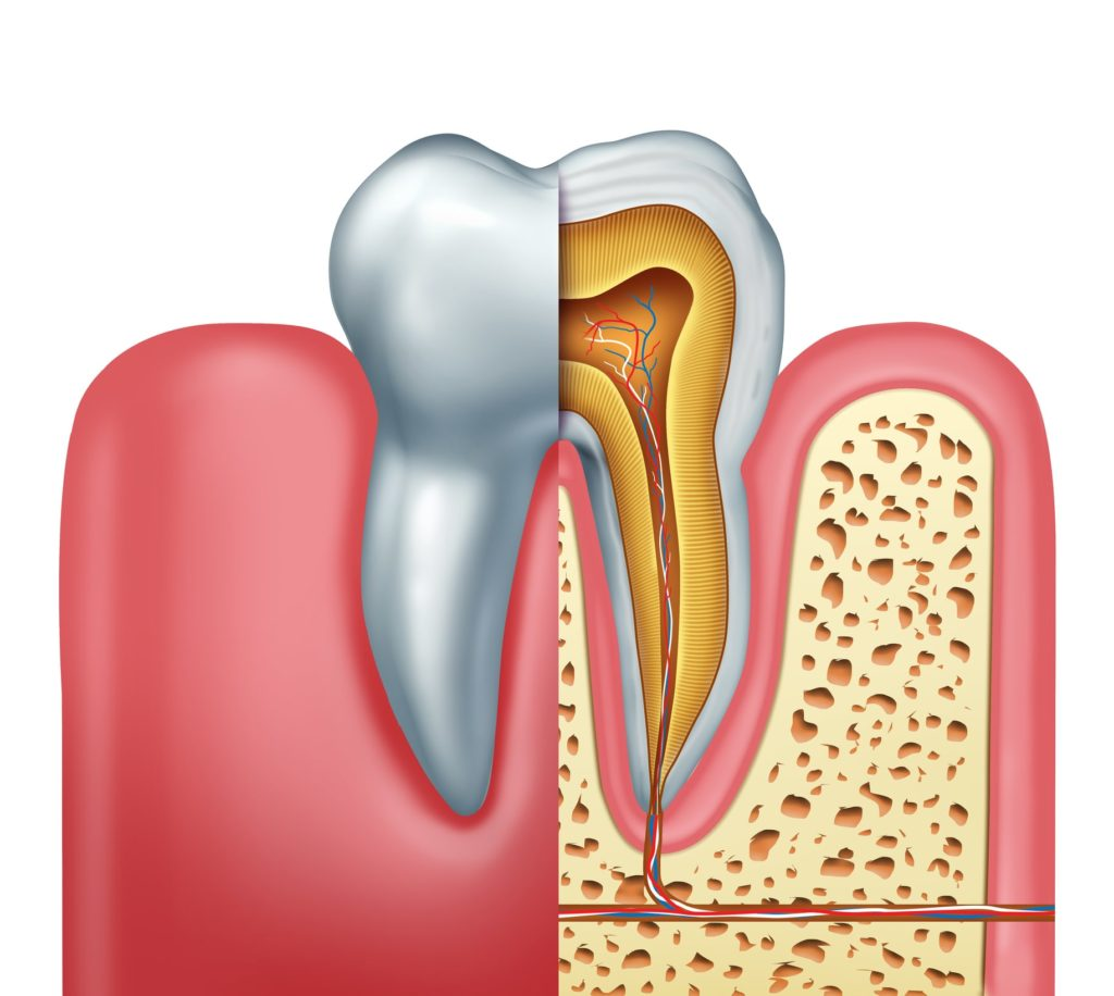 The Dentist, root canal, root canal treatment, root canal causes