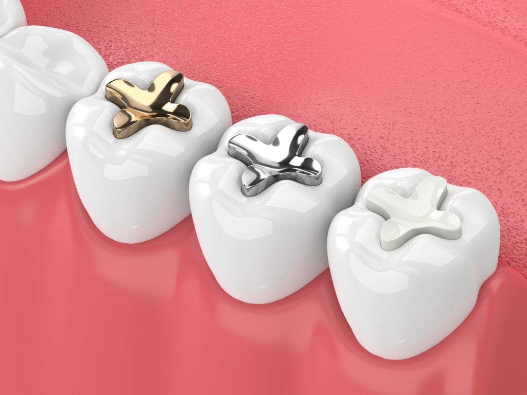 Illustration of a row of teeth with different types of fillings in them