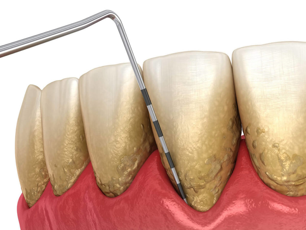 Illustration of periodontal/gum disease progress being checked on a row of teeth with plaque on them